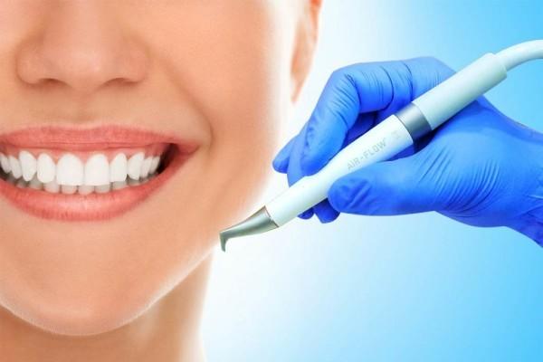 Удаление зубного камня при помощи ультразвука