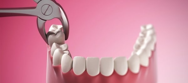 Высокая температура после удаления зуба