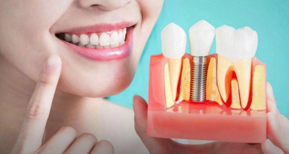 Имплантация зубов это больно