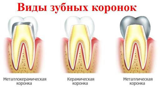 Протезирование зубов: некоторые нюансы
