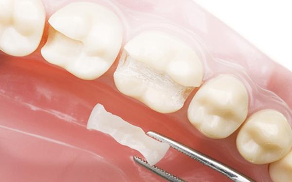 Современные принципы реставрации зубов