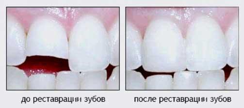 откололся зуб и царапает язык