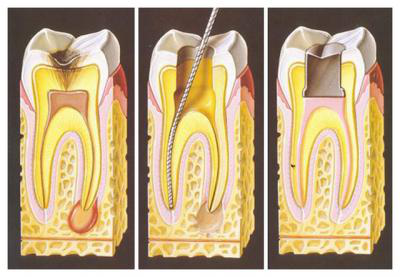 Этапы лечения воспаления корня зуба