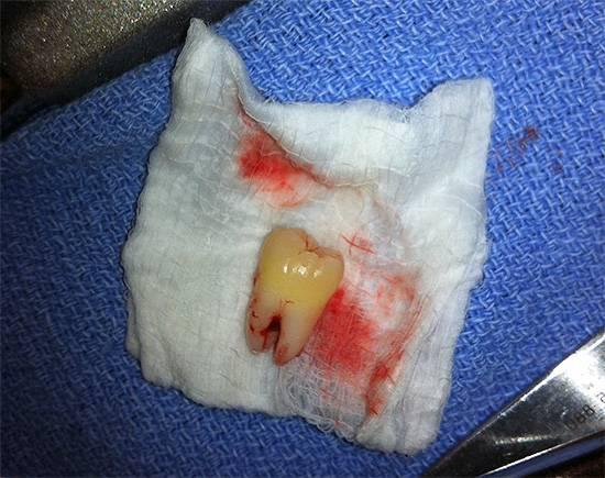 Если вовремя удалить раздражающий десну зуб хирургическим путем, то это позволит избежать в дальнейшем многих проблем.