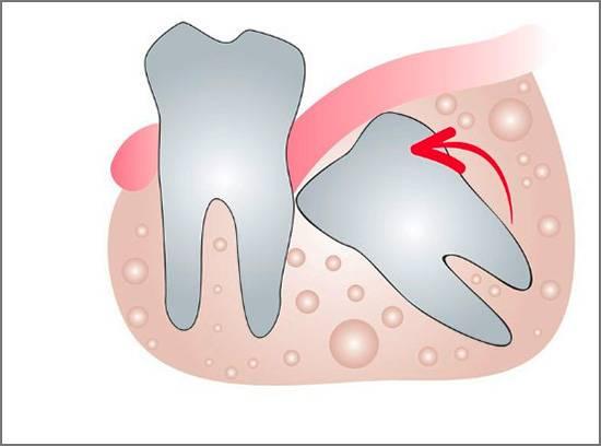 Растущие зубы мудрости могут привести к серьезному нарушению прикуса