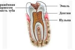 Кариес - причина скола зуба
