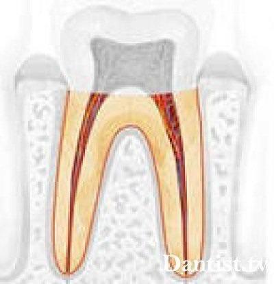 Количество корней зуба мудрости