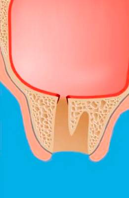Перфорация гайморовой пазухи при удалении верхнего зуба.